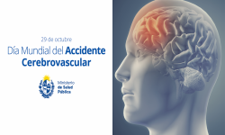 Día Mundial del Accidente Cerebrovascular